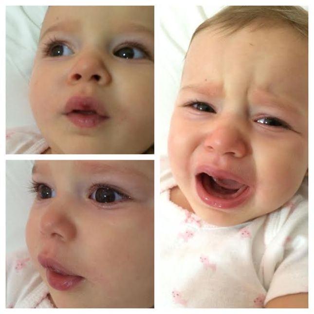 Lily com a boca machucada